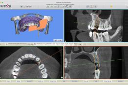 Clinic of Oral and Maxillo-facial Surgery with digitalized 3-d planning