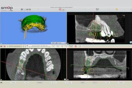 Modern technology in practice for oral, maxillofacial and facial surgery